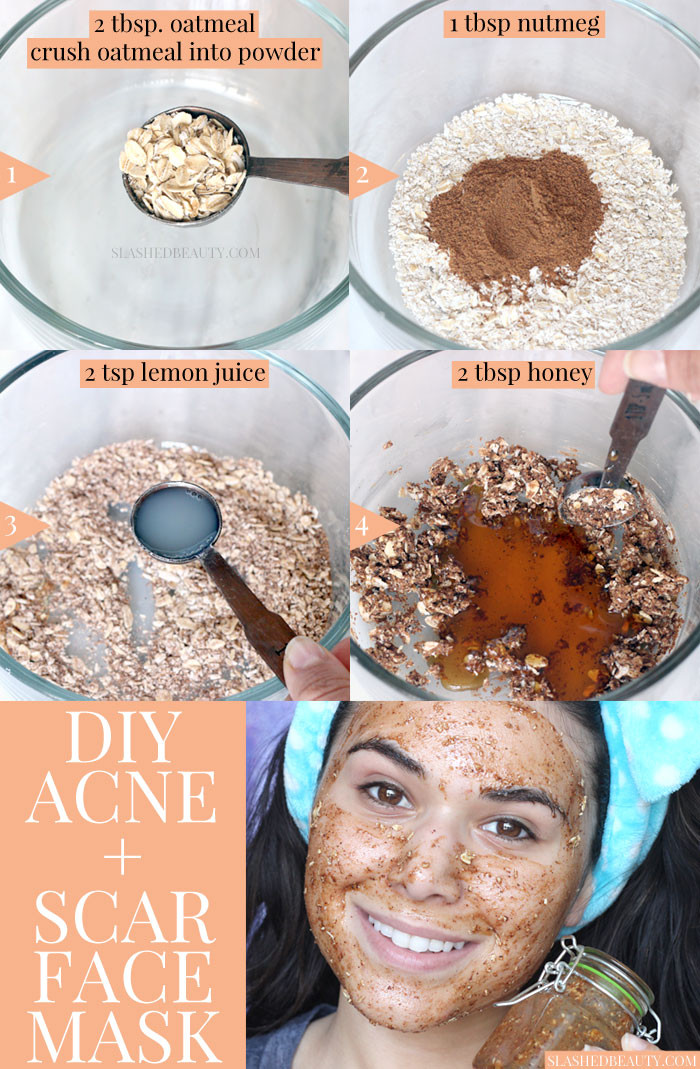 Acne Masks DIY  Best DIY Face Mask for Acne & Scars