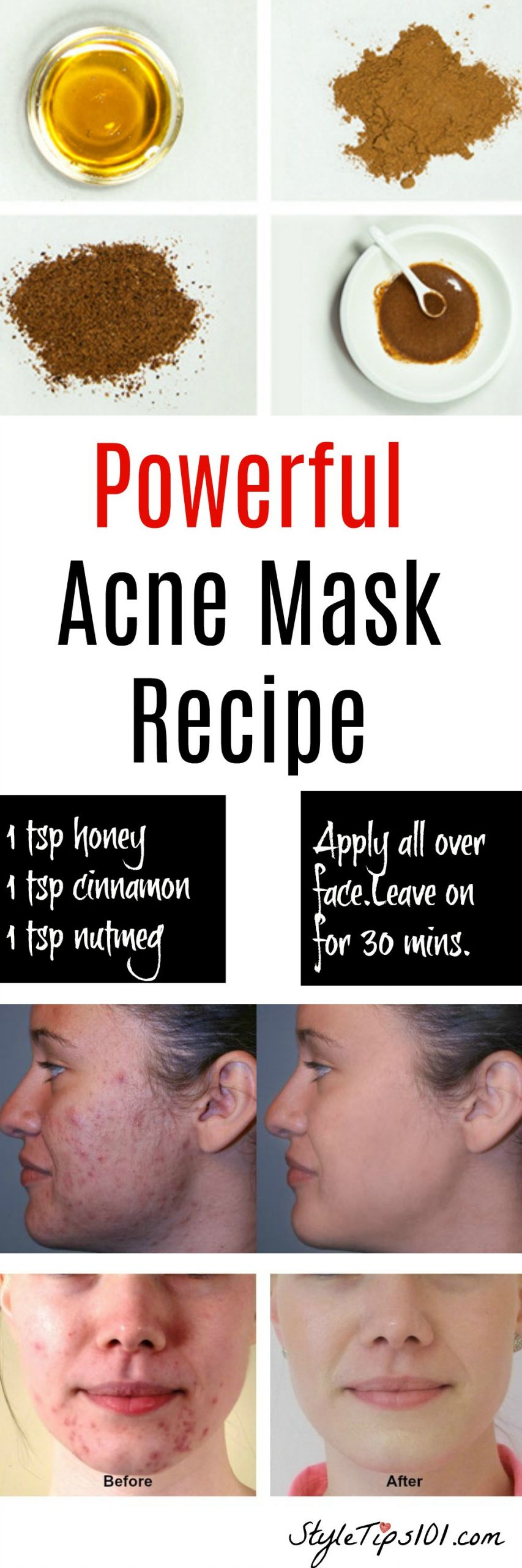 Acne Masks DIY  Homemade Natural Acne Mask